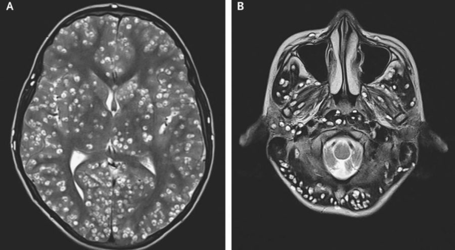 Man's dotted brain is due to cysts caused by tapeworm infection