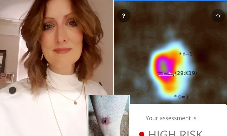 Tanning addict claims she was diagnosed with skin cancer through an app after doctors dismissed her unusual mole
