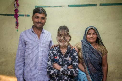 Indian teen Lalit Patidar,was born with a genetic form of hypertrichosis.